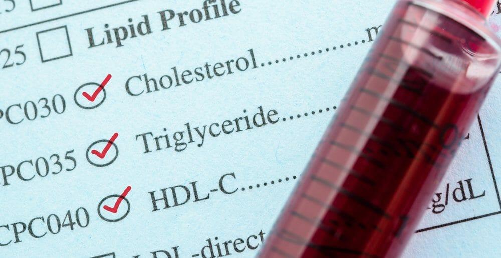 Triglycérides élevés : 4 méthodes pour faire baisser un taux excessif