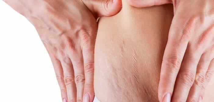 Vergetures sur le ventre : que faire